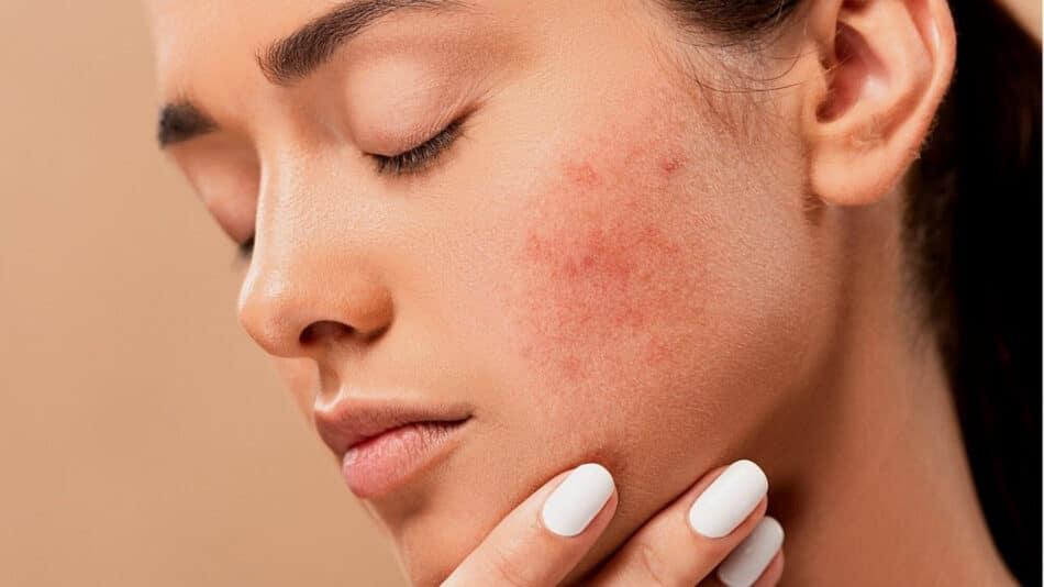 Quelles huiles végétales utiliser pour soigner l'acné?
